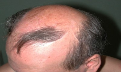 A new breakthrough in the direction to cure baldness