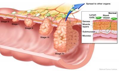 Socio-Economic Advancement To Reduce Premature Colorectal Cancer Deaths By Half