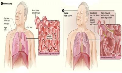 COPD: CHRONIC OBSTRUCTIVE PULMONARY DISEASE