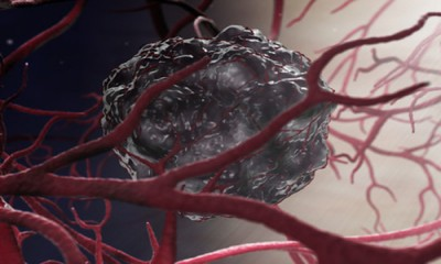 New studies will help further in preventing tumors